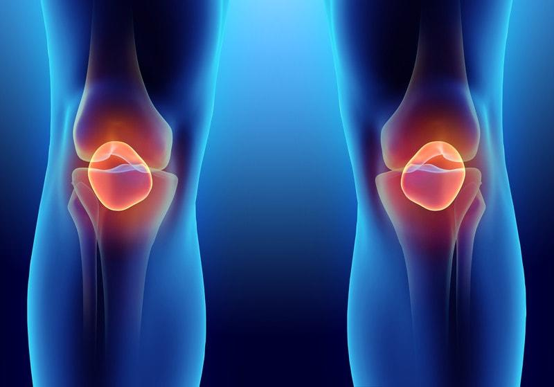 X-ray image of highlighted kneecaps