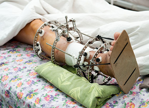 Limb lengthening procedure