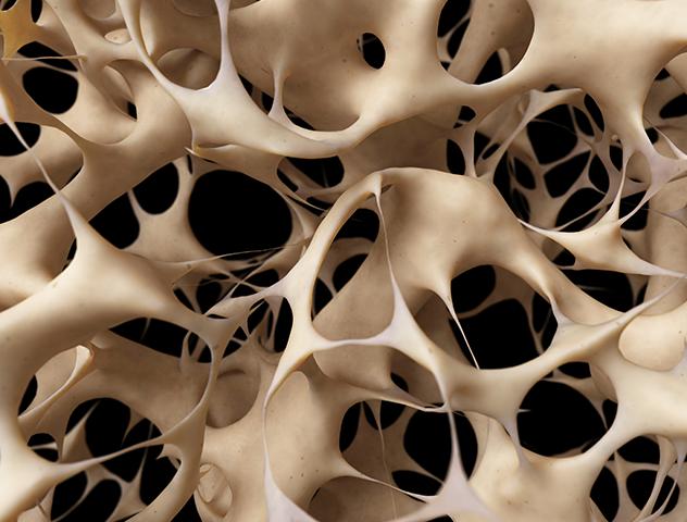 Image of Osteoporosis