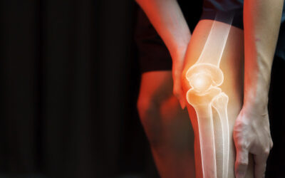 Hip & Knee – Joint Revision Arthroplasty